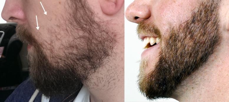 пушковая борода